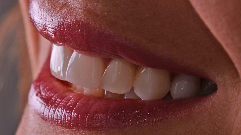 Sorriso dopo un trattamento di sbaincamento dentale