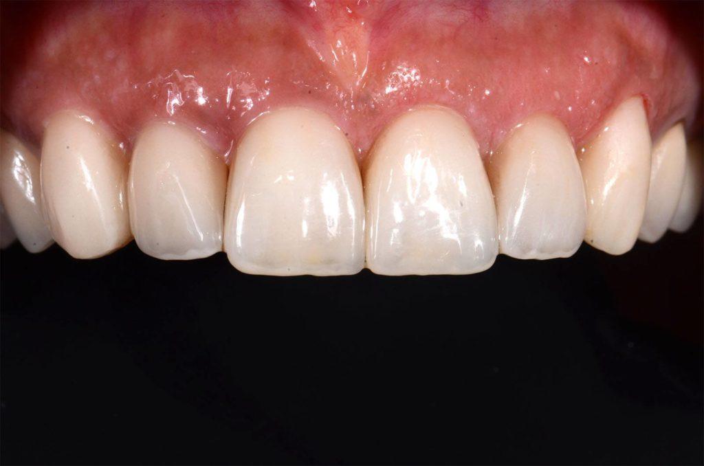 I denti di Carmen prima dopo l'applicazione di corone dentali