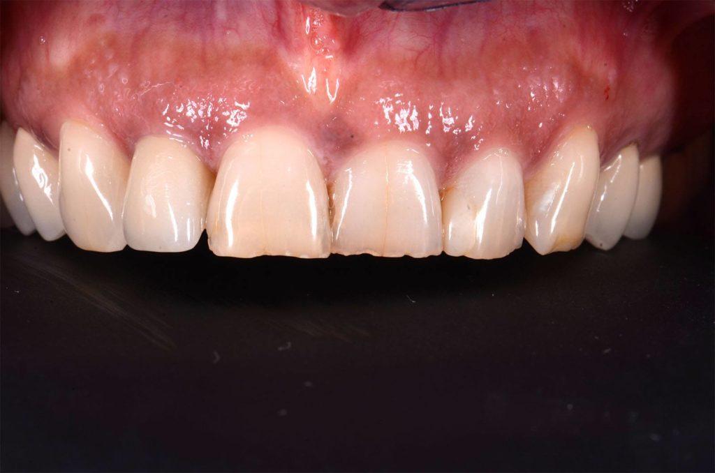 I denti di Carmen prima degli interventi