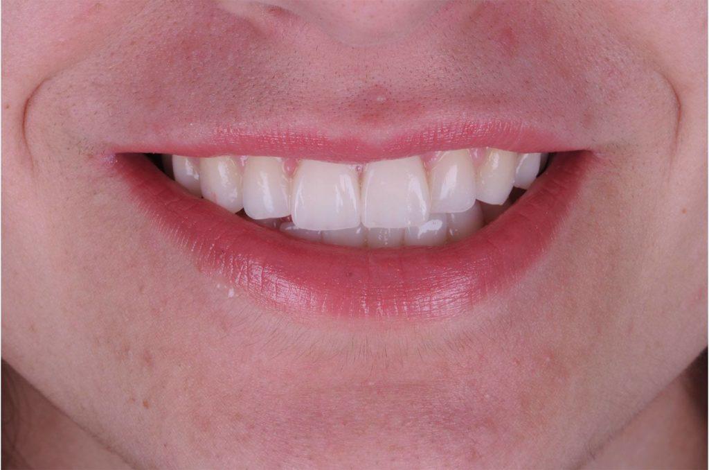 I denti di Eleonora dopo l'applicazione delle faccette dentali