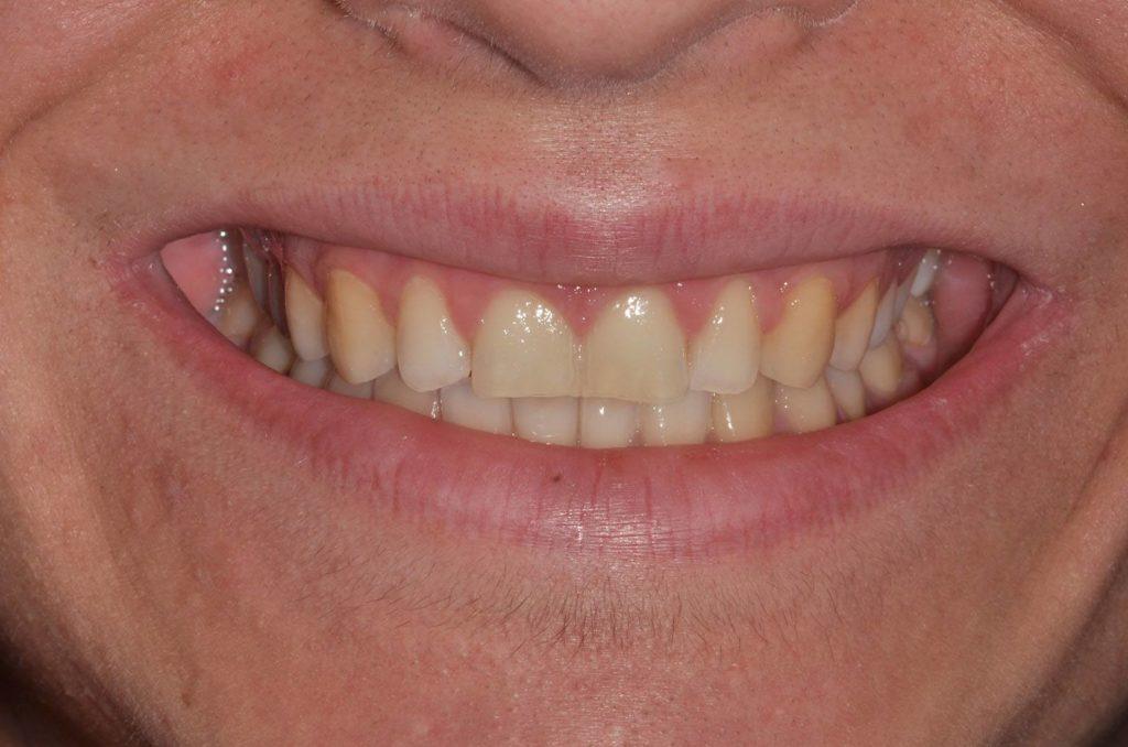 I denti di Eleonora prima dell'intervento