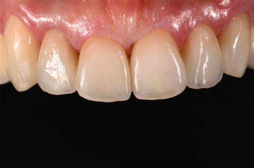 I denti di Mariella dopo l'intervento