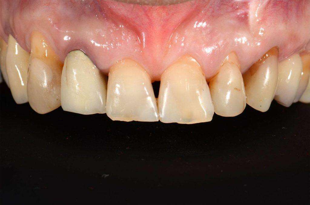 I denti di Mariella prima dell'intervento