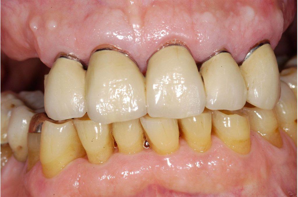 Una fase dell'intervento di Stefano per ricostruzione dentale